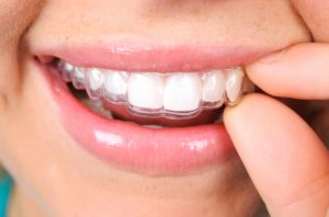Come get Invisalign in Oklahoma City, OK from Grand Dental Studio.